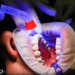 Złe podejście żywienia się to większe niedobory w ustach a również ich utratę